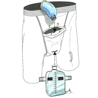 Urinary Incontinence -- Incontinence Products   Health.com