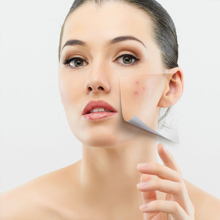 How Get Rid of Stubborn Acne—for Good