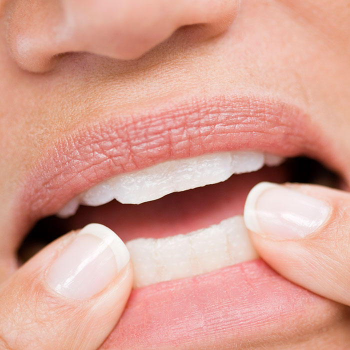 10 Terrifying Reasons To Stop Nail Biting For Good