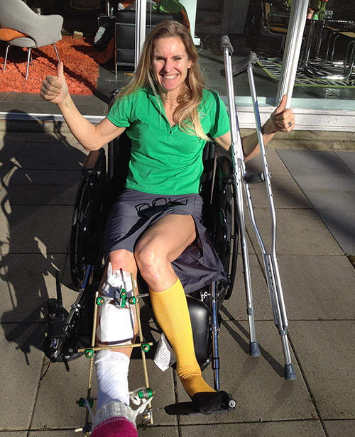 Recovery After Breaking Leg Benefits Of Strength Training For