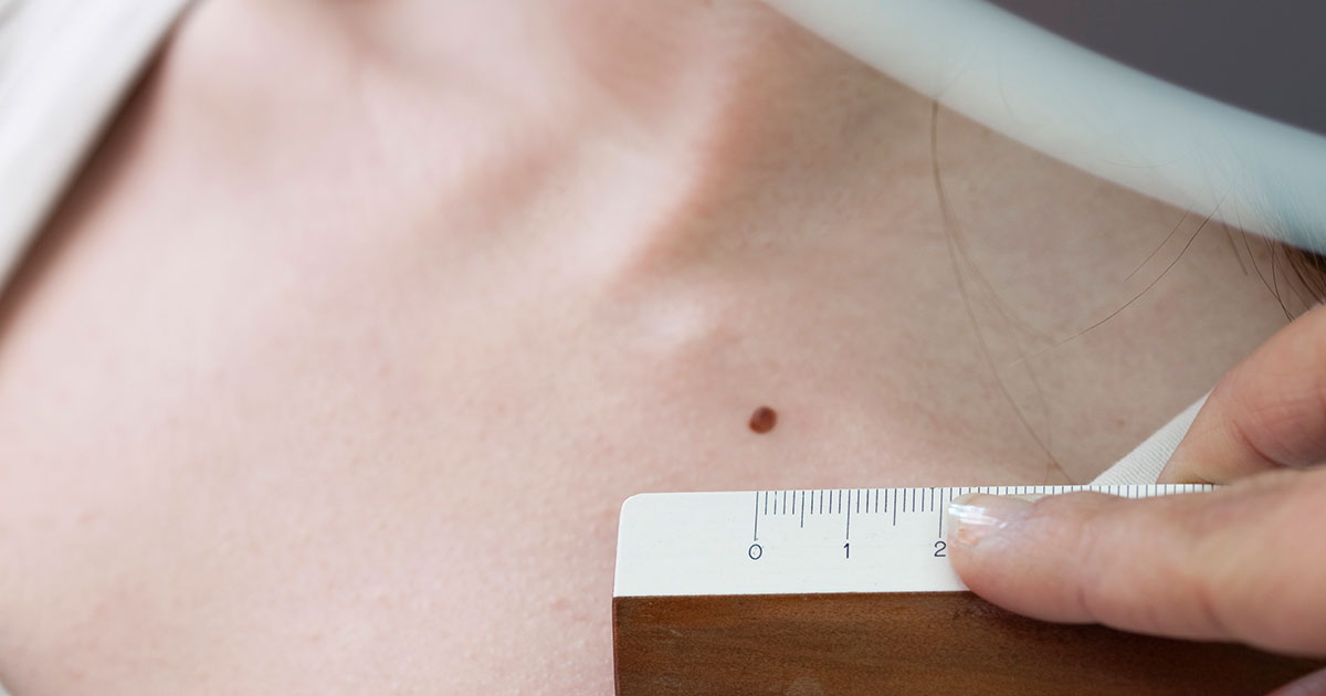 How Often To Get Skin Cancer Screenings At Dermatologist Shape