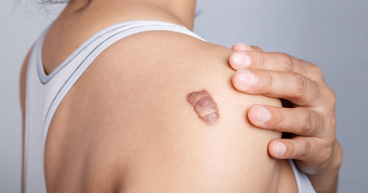 The Best Scar Treatment For Atrophic Hypertrophic And Keloid Scars
