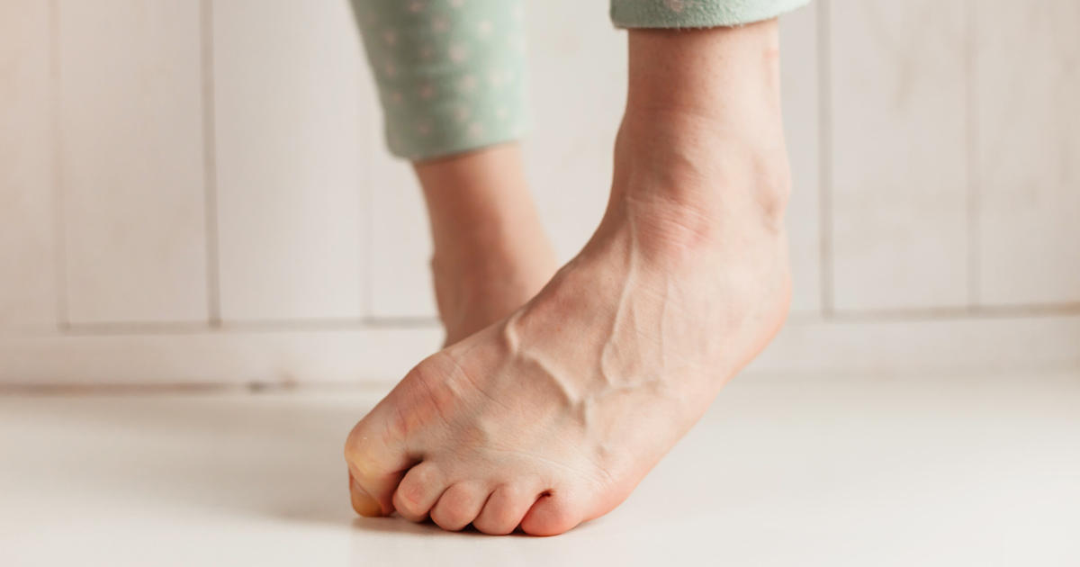 What to Do If Your Toenail Is Falling Off | Shape Magazine