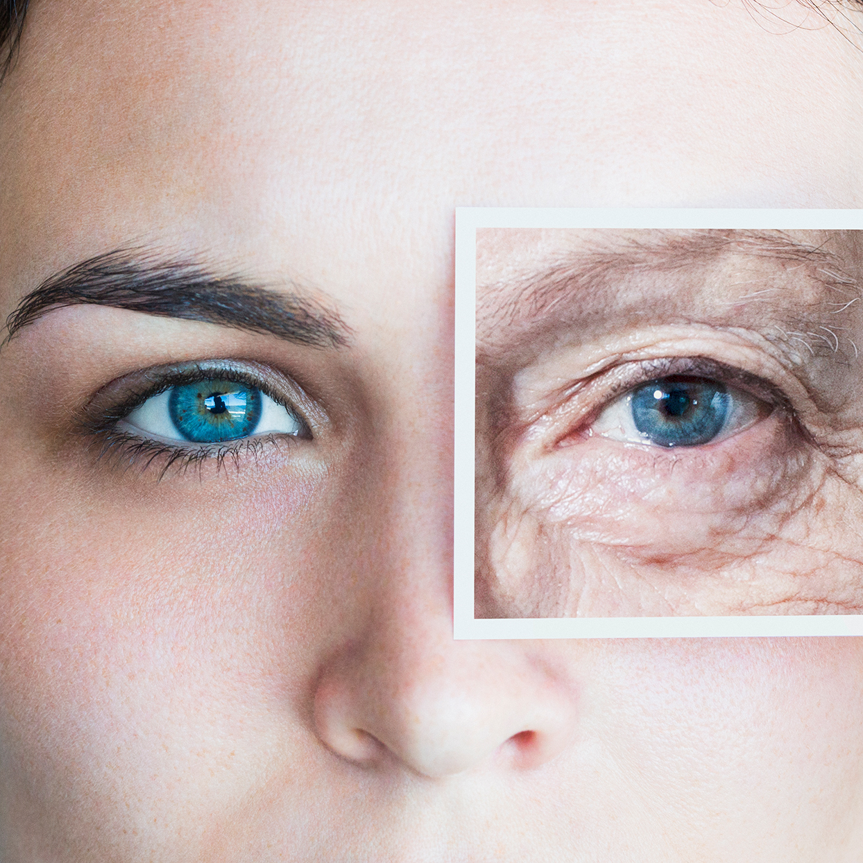 What Causes Wrinkles These Everyday Habits Can Age Your Skin Shape