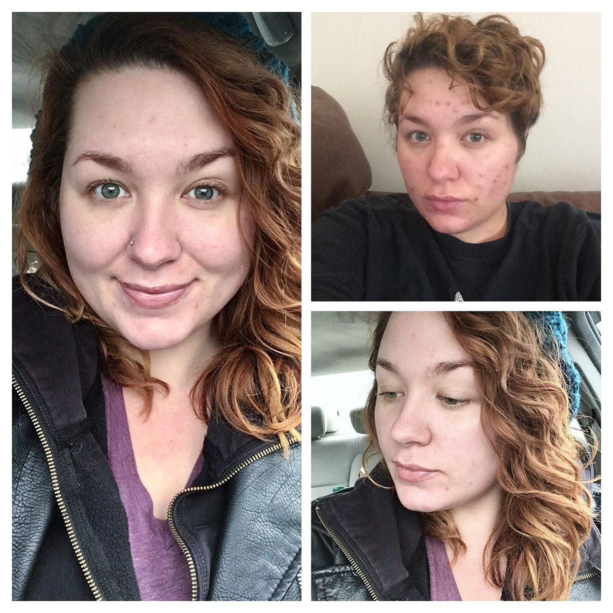 This Redditor Shared Her Cystic Acne Transformation and the Products She Swears By