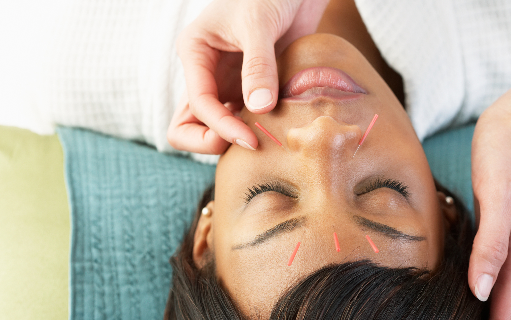 woman getting acupuncture on face