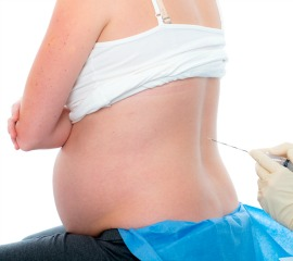 When Is the Right Time to Get an Epidural? 26823