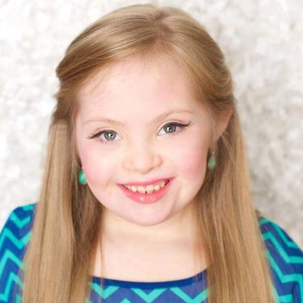 kayla kosmalski model with down syndrome