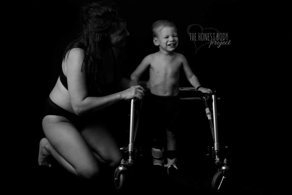 honest body project special needs photo of mom helping son with walker