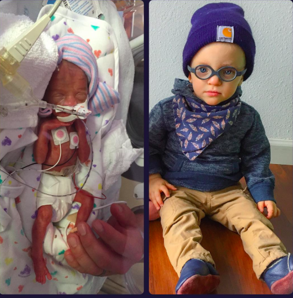 These Preemie Parents Are Sharing Their NICU Photos to Give Others Hope