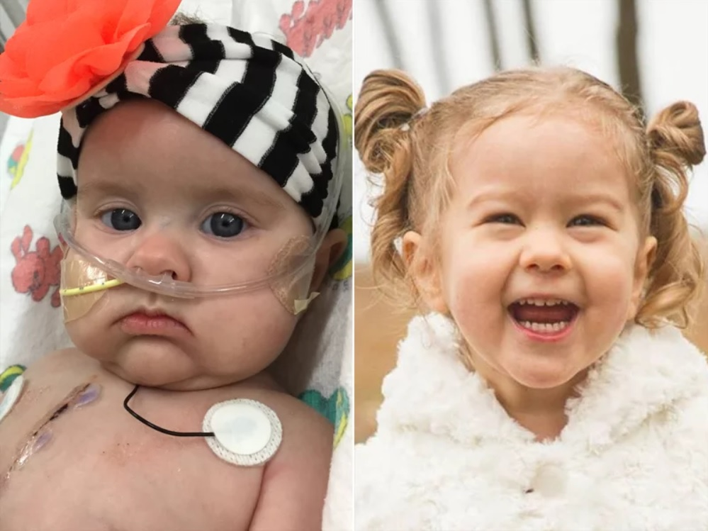 Toddler Thriving After Getting World's Tiniest Heart Valve as Infant: We Knew 'She Could Die'