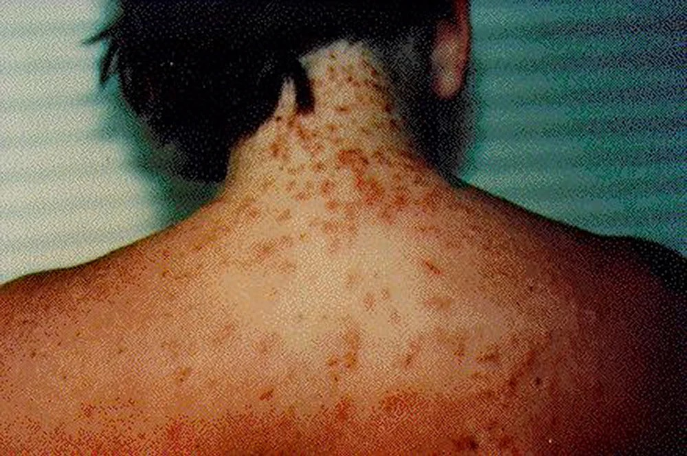 Florida Department of Health Warns Beachgoers About Outbreak of Sea Lice in the Water
