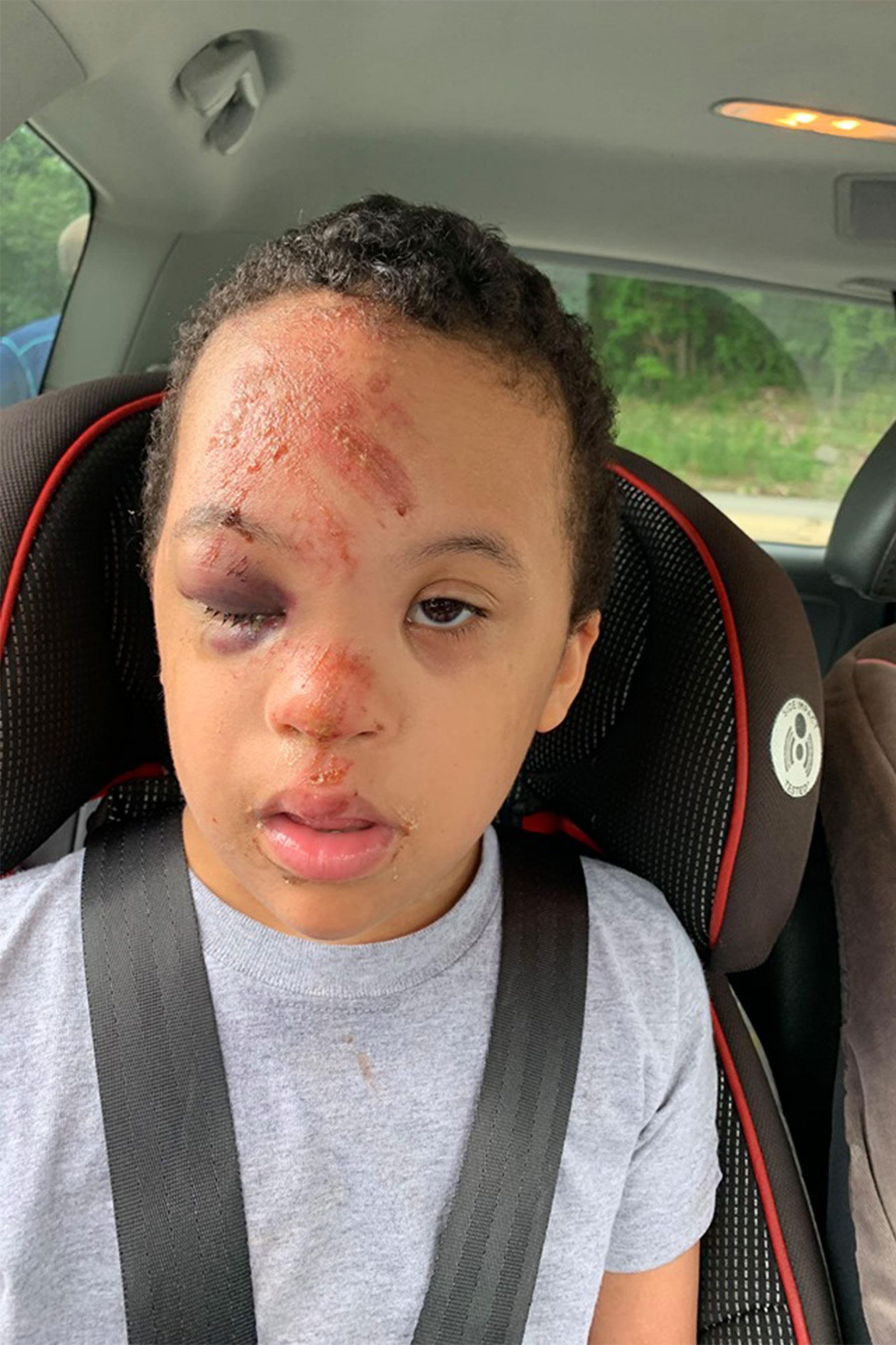 Pennsylvania Mom Outraged After Son, 7, with Down Syndrome Suffers Bloodied Face on School Bus