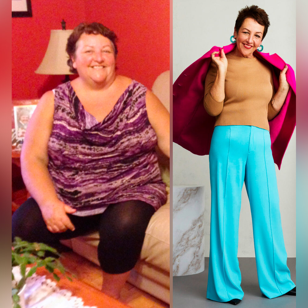 Losing Weight Helped This Woman Find Her Breast Cancer — and Then She Dropped Half Her Size
